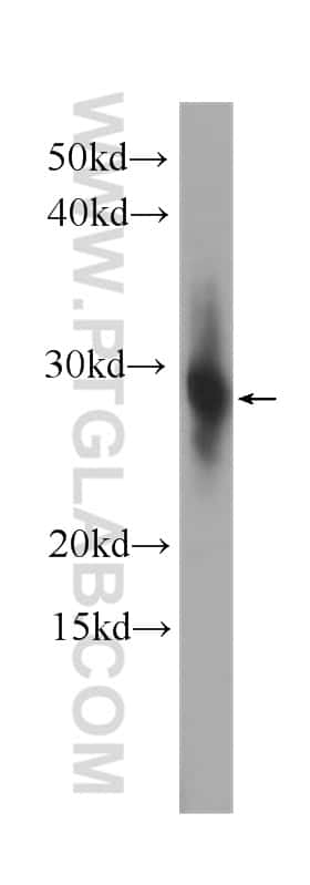 CRYBB1 Antibody in Western Blot (WB)