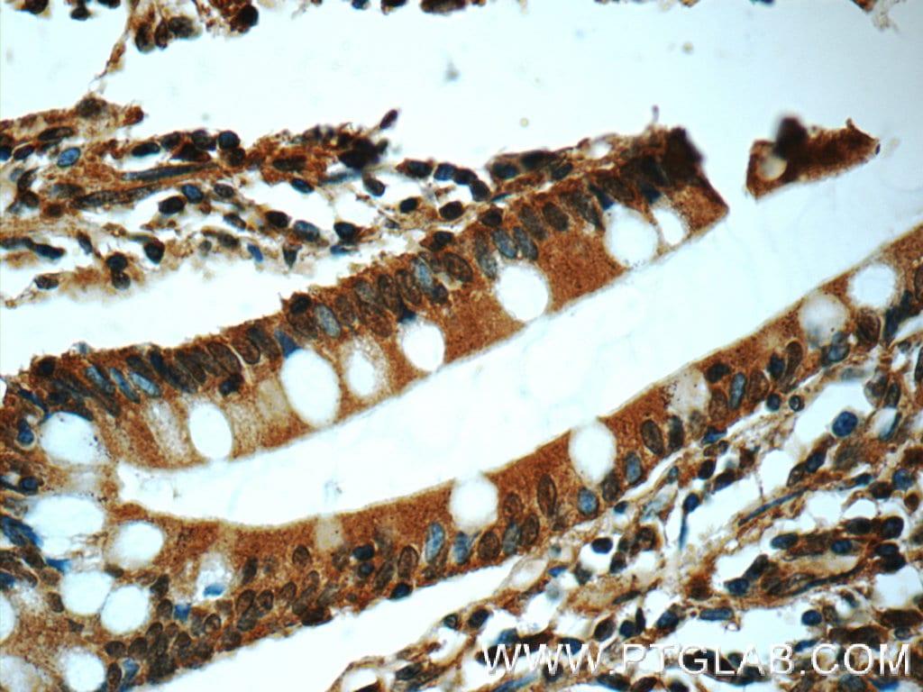 Chk1 Antibody in Immunohistochemistry (Paraffin) (IHC (P))