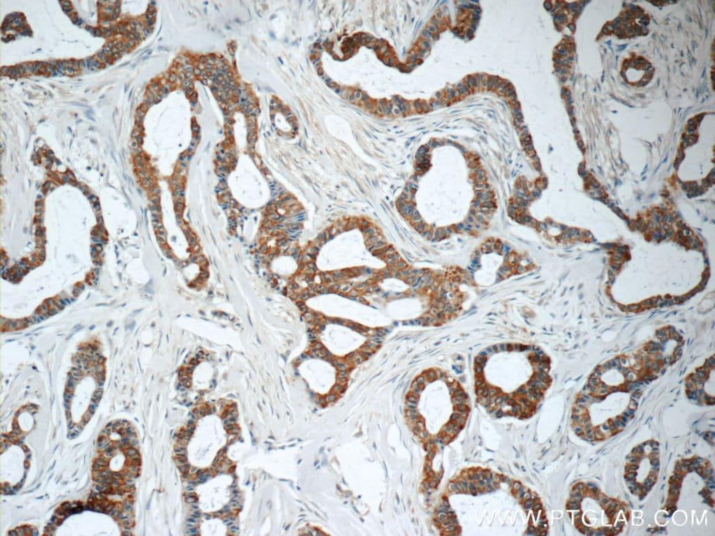 TNF alpha Antibody in Immunohistochemistry (Paraffin) (IHC (P))