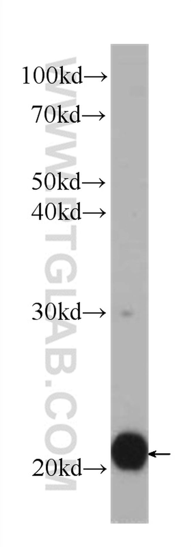 BID Antibody in Western Blot (WB)