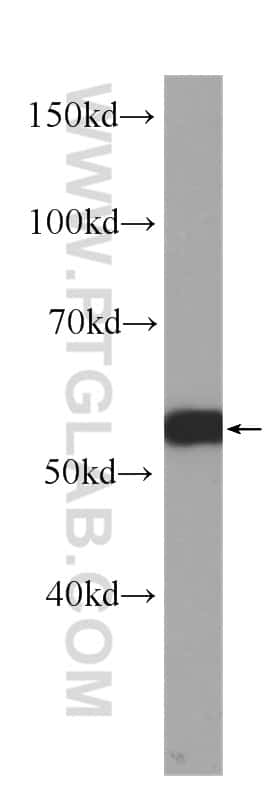 c-SRC Antibody in Western Blot (WB)