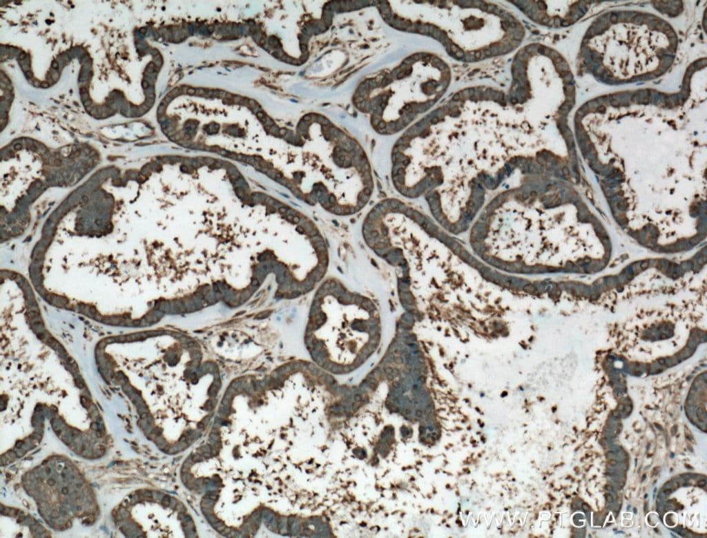 HSP90 Antibody in Immunohistochemistry (Paraffin) (IHC (P))
