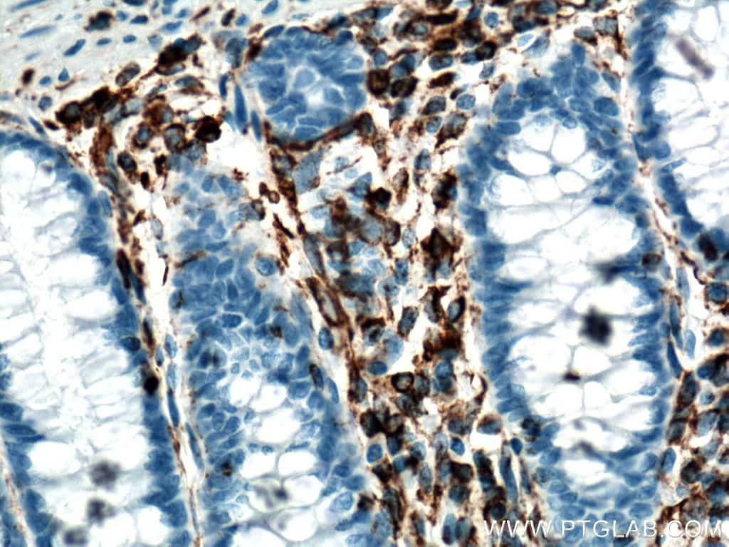 Vimentin Antibody in Immunohistochemistry (Paraffin) (IHC (P))