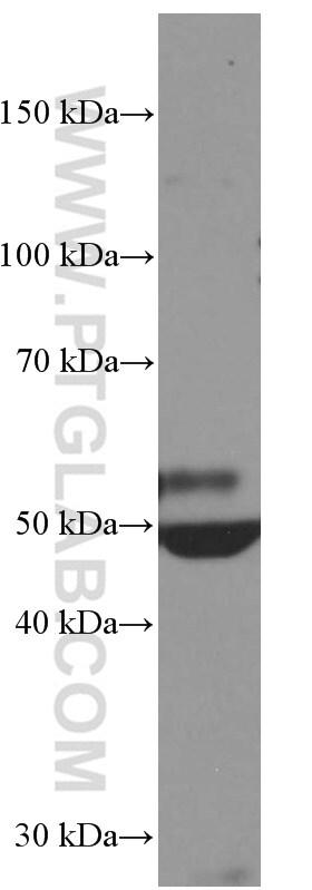 Myocilin Antibody in Western Blot (WB)
