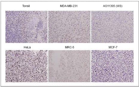 WRN Antibody in Immunohistochemistry (IHC)