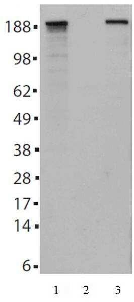 Tet2 Antibody in Western Blot (WB)