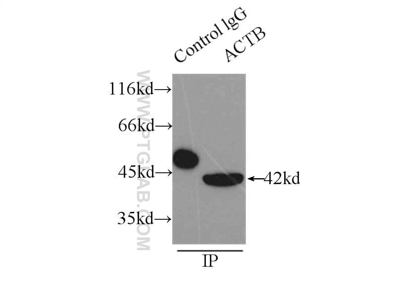beta Actin Antibody in Immunoprecipitation (IP)