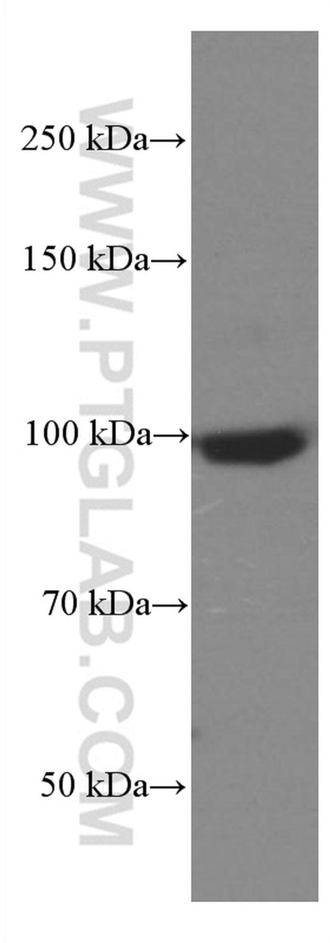 SEC5/EXOC2 Antibody in Western Blot (WB)