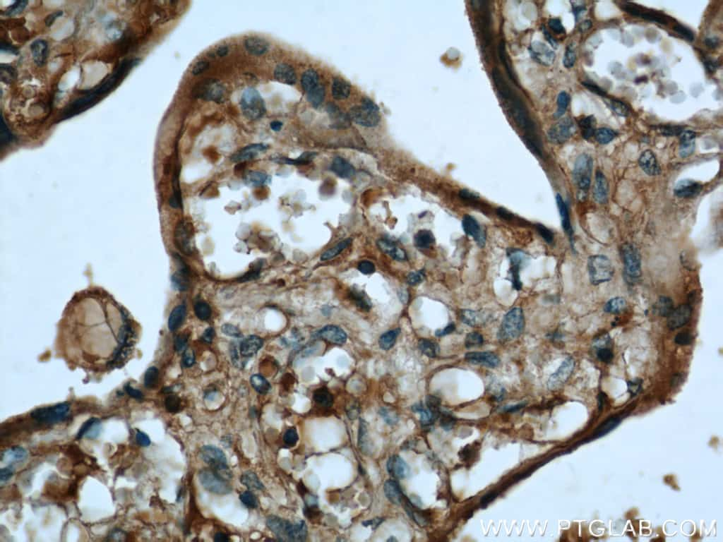 AHCY Antibody in Immunohistochemistry (Paraffin) (IHC (P))