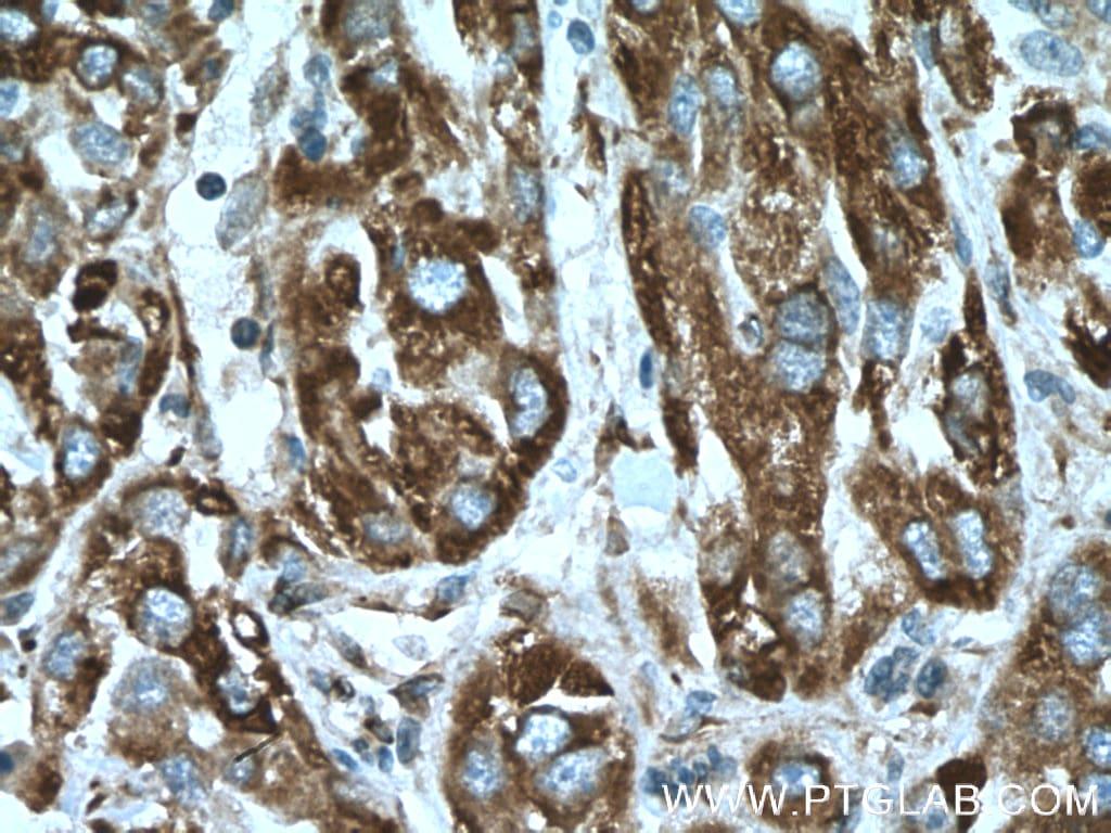 CYB5R3 Antibody in Immunohistochemistry (Paraffin) (IHC (P))