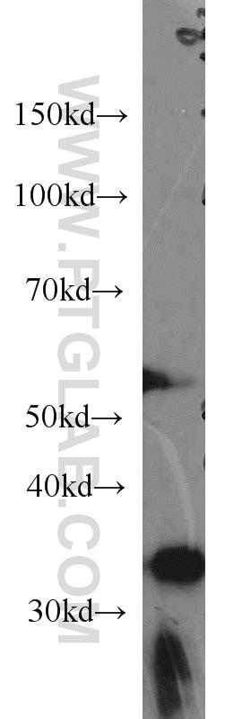 CYB5R3 Antibody in Western Blot (WB)