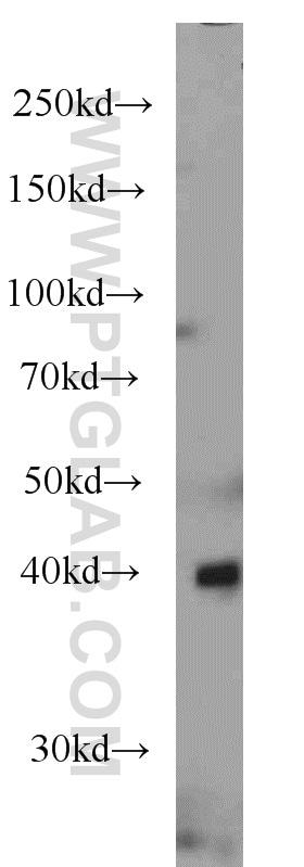 ASS1 Antibody in Western Blot (WB)