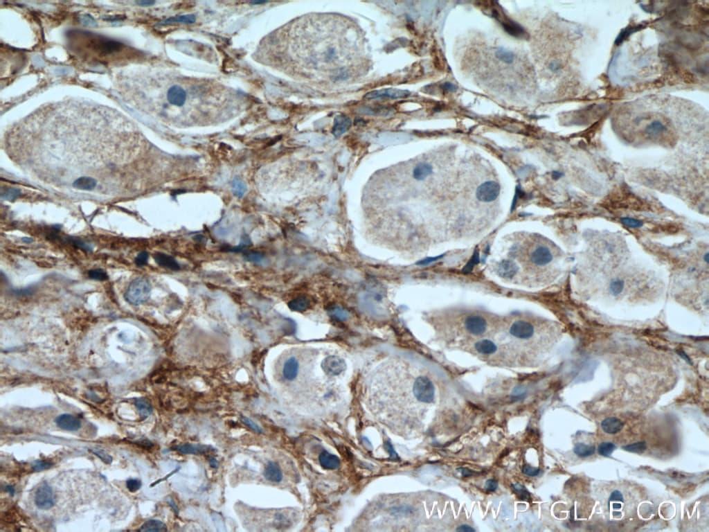 Fibronectin Antibody in Immunohistochemistry (Paraffin) (IHC (P))