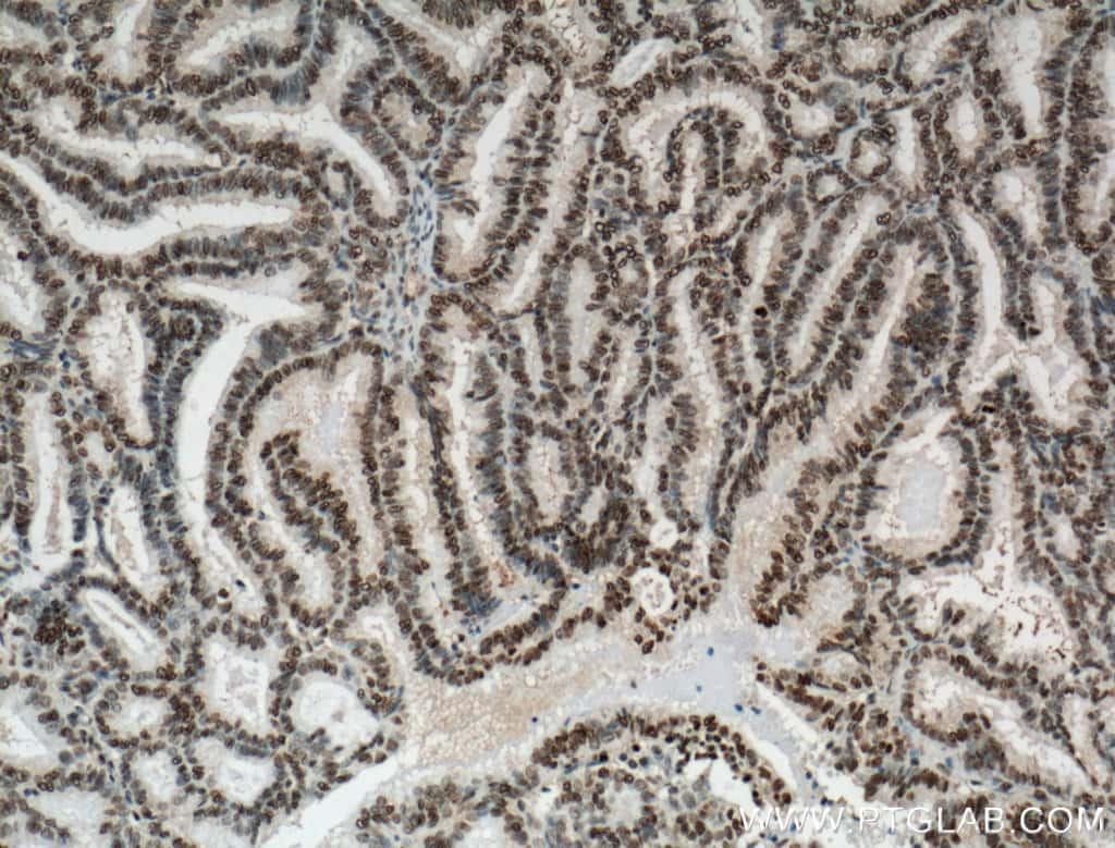 NTF2 Antibody in Immunohistochemistry (Paraffin) (IHC (P))