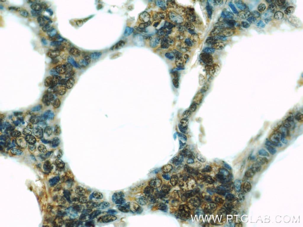 UBE2C Antibody in Immunohistochemistry (Paraffin) (IHC (P))