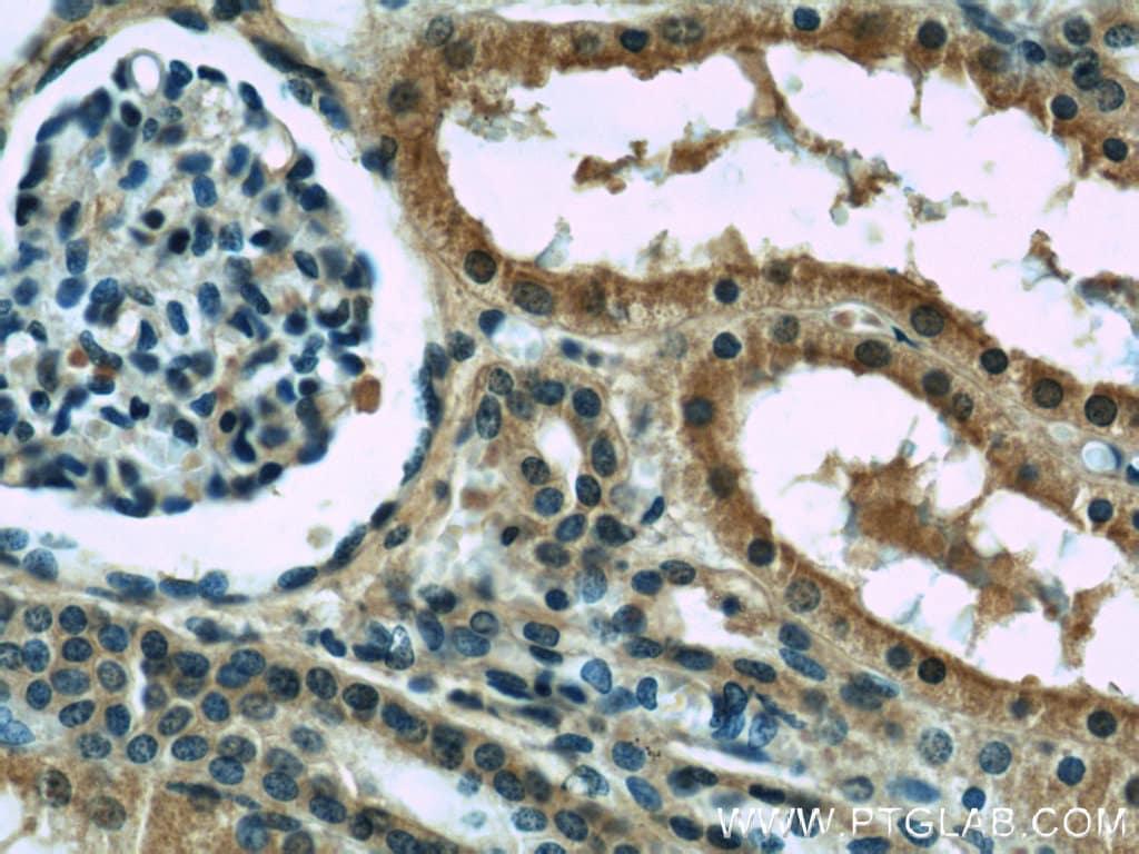 Melanophilin Antibody in Immunohistochemistry (Paraffin) (IHC (P))