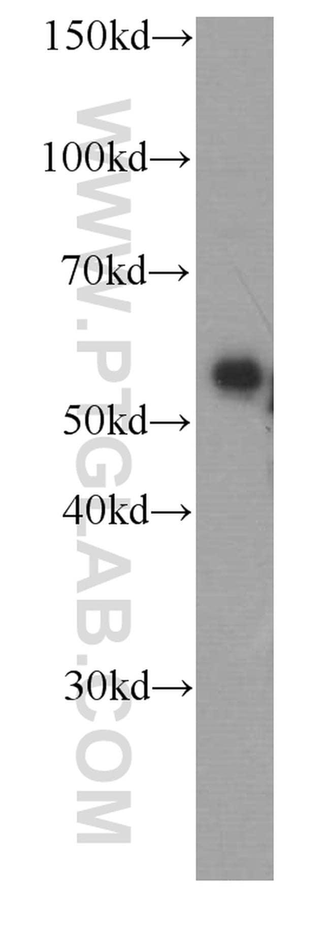 Fetuin-A Antibody in Western Blot (WB)