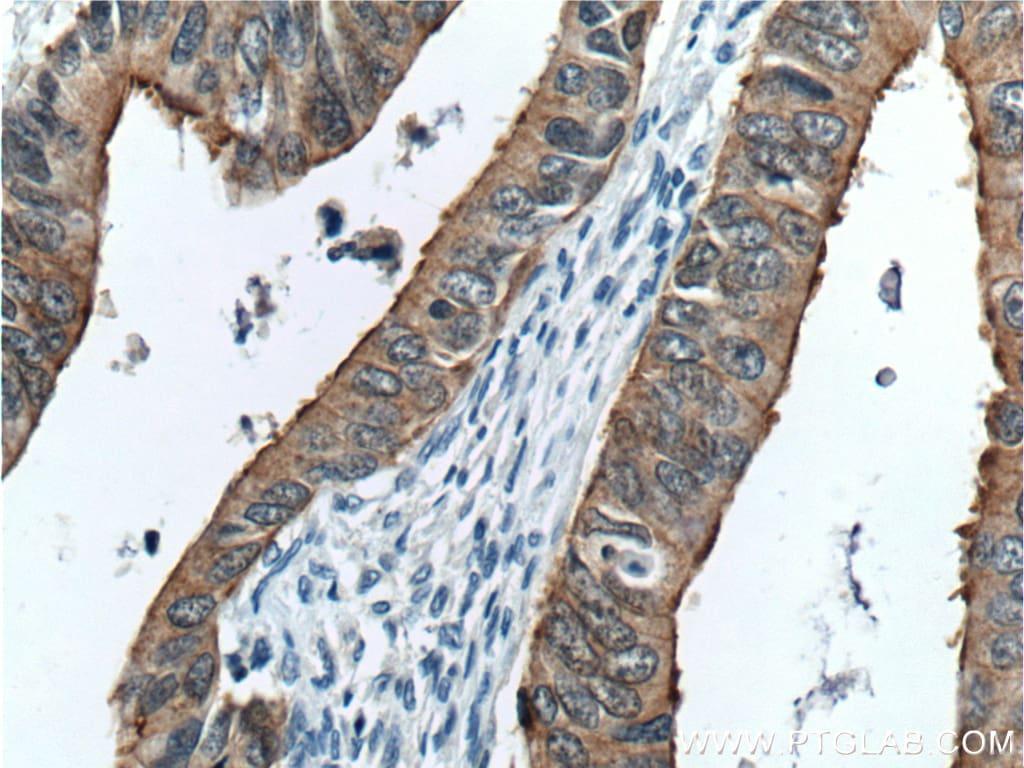 Villin Antibody in Immunohistochemistry (Paraffin) (IHC (P))