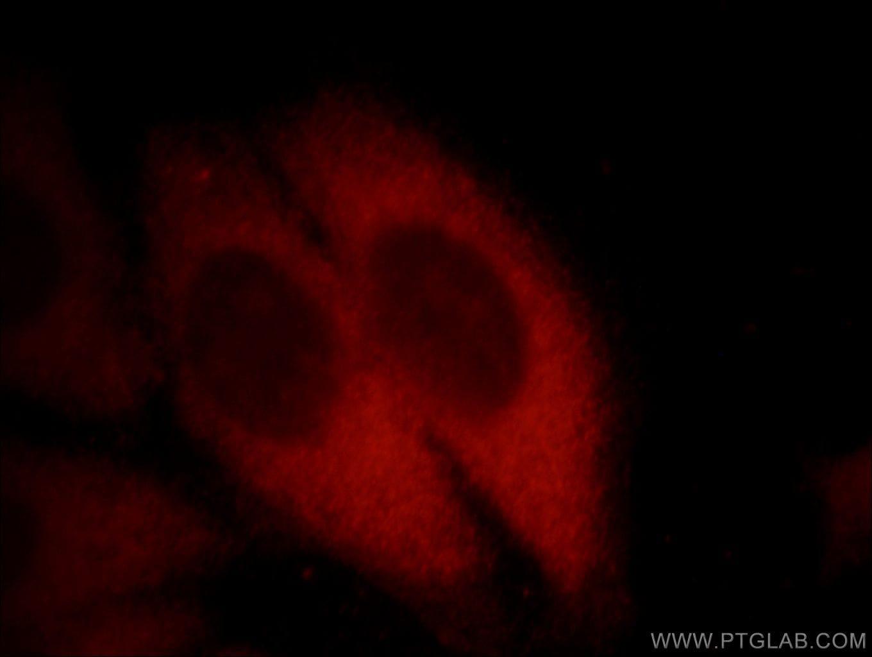 EXOSC2 Antibody in Immunofluorescence (IF)