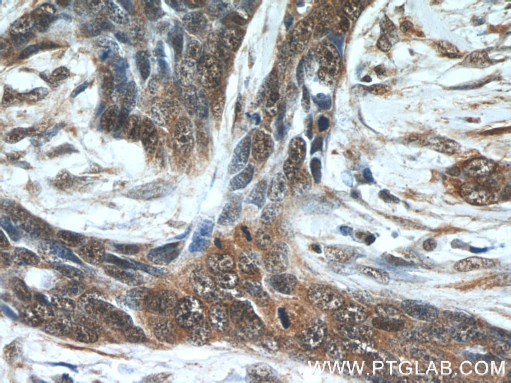 EXOSC2 Antibody in Immunohistochemistry (Paraffin) (IHC (P))