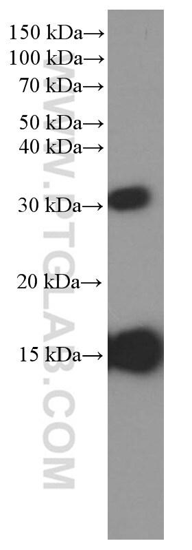 Prealbumin/transthyretin Antibody in Western Blot (WB)