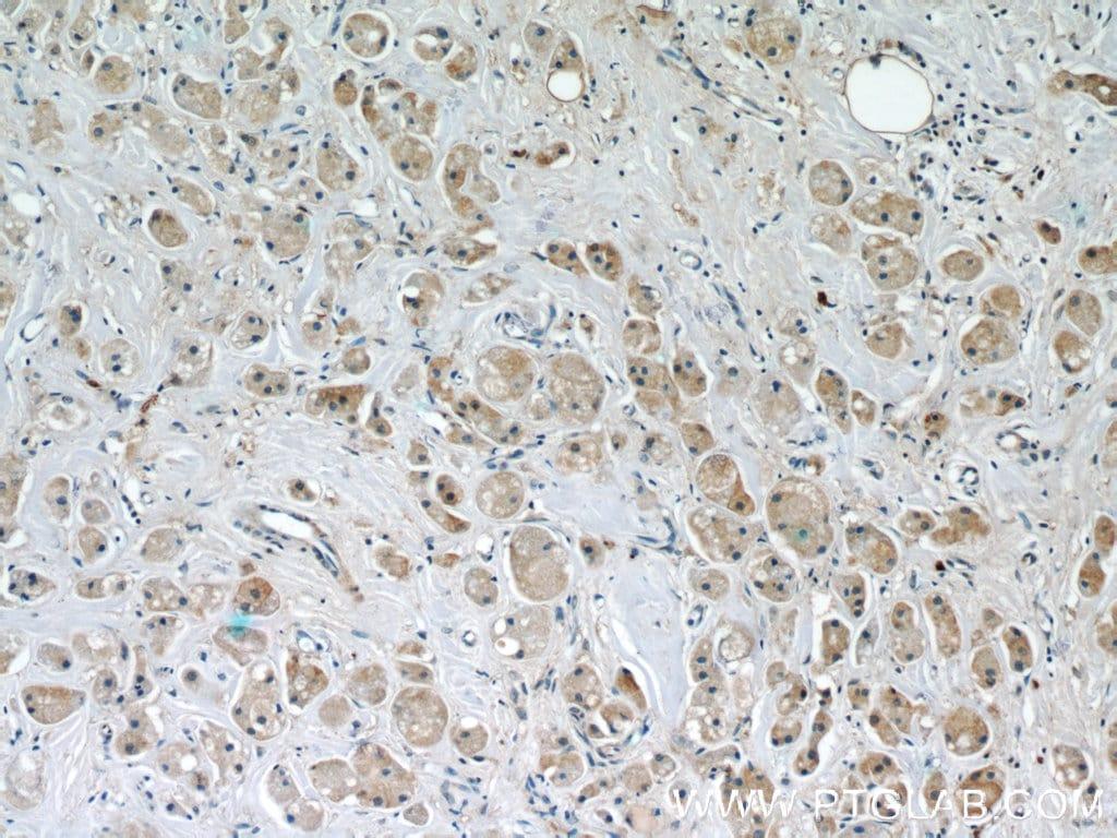 FUT8 Antibody in Immunohistochemistry (Paraffin) (IHC (P))