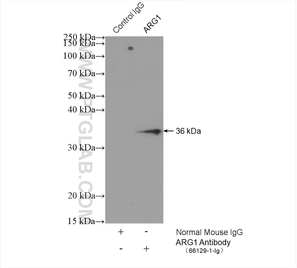ARG1 Antibody in Immunoprecipitation (IP)