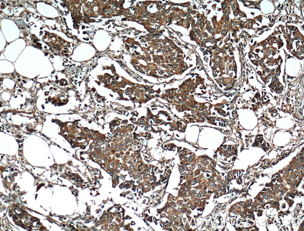 RPL3 Antibody in Immunohistochemistry (Paraffin) (IHC (P))