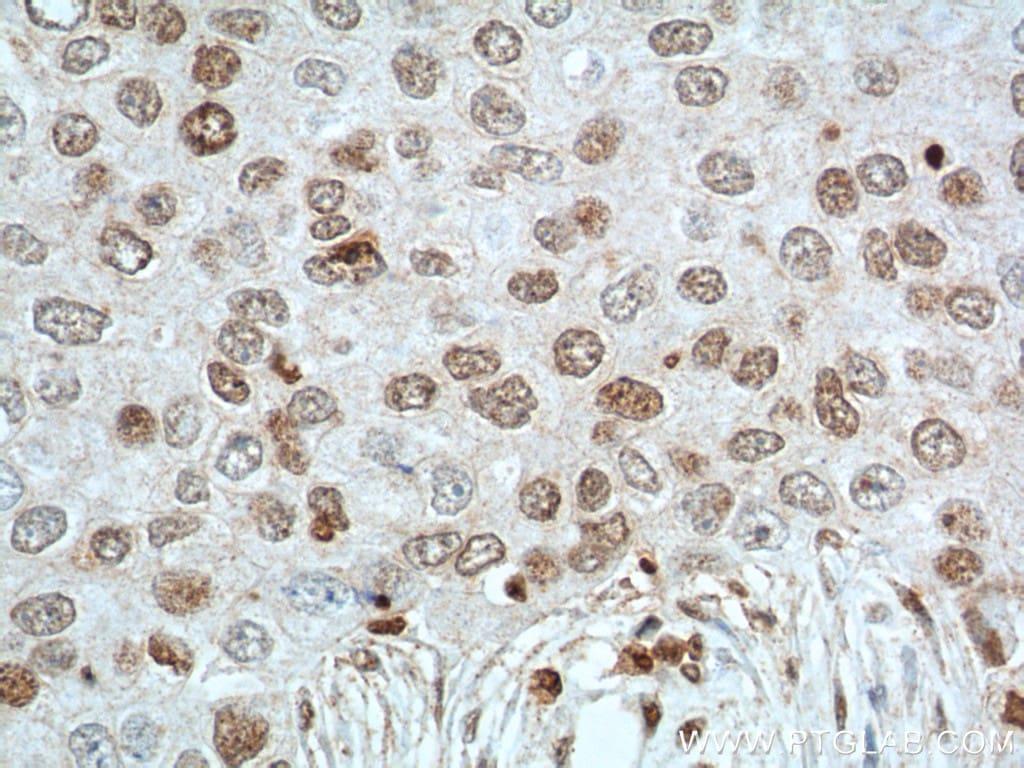 TBP Antibody in Immunohistochemistry (Paraffin) (IHC (P))