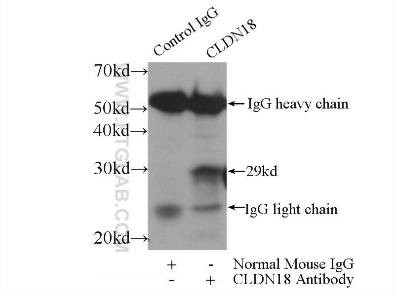 Claudin 18 Antibody in Immunoprecipitation (IP)
