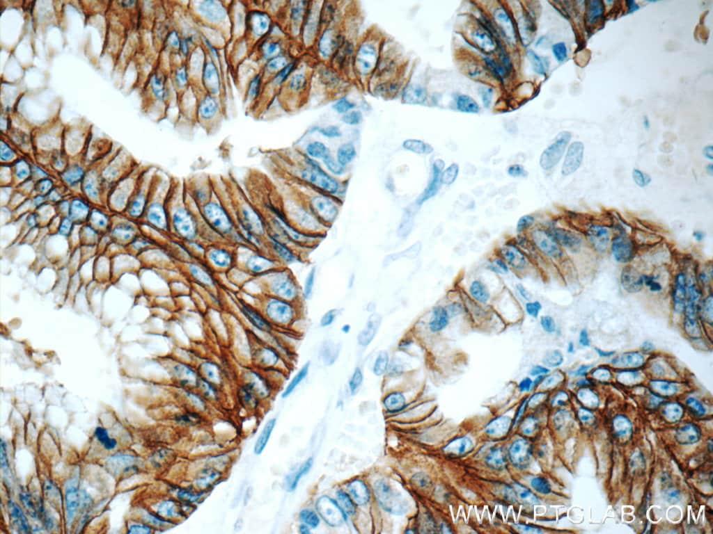 Claudin 18 Antibody in Immunohistochemistry (Paraffin) (IHC (P))