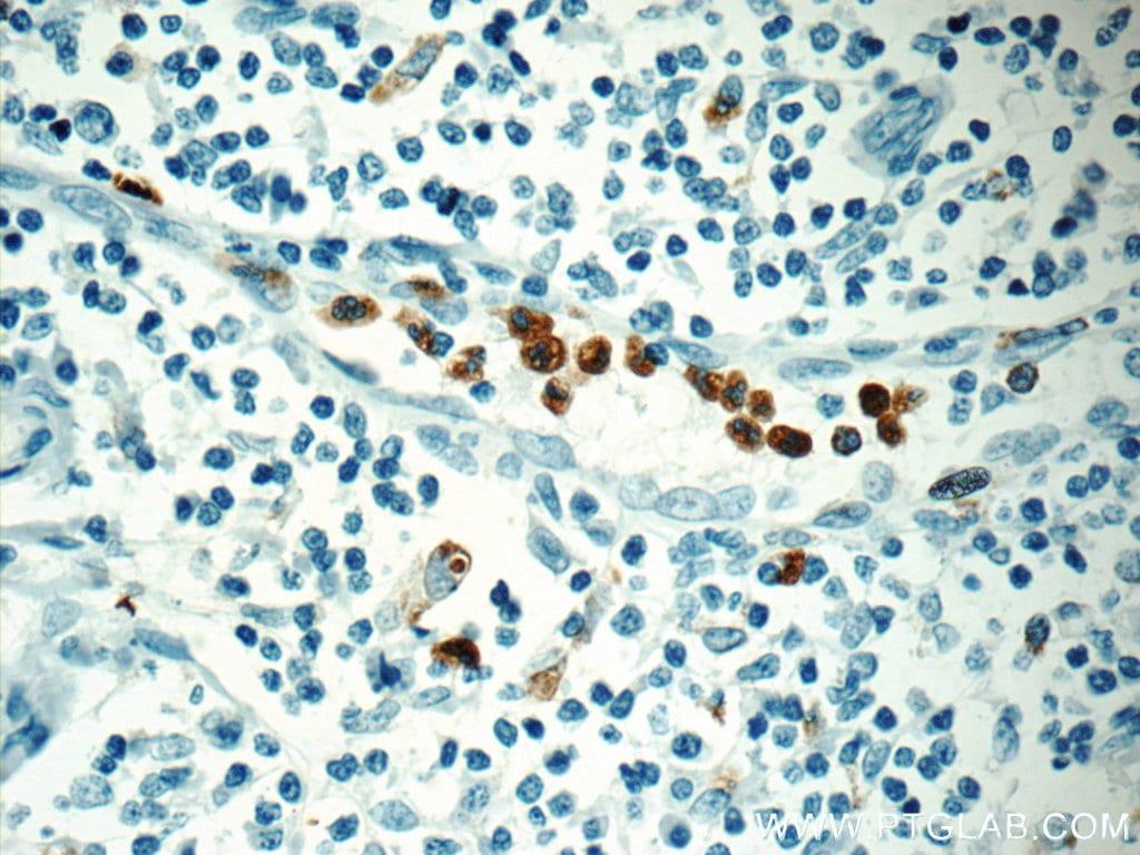 MPO Antibody in Immunohistochemistry (Paraffin) (IHC (P))