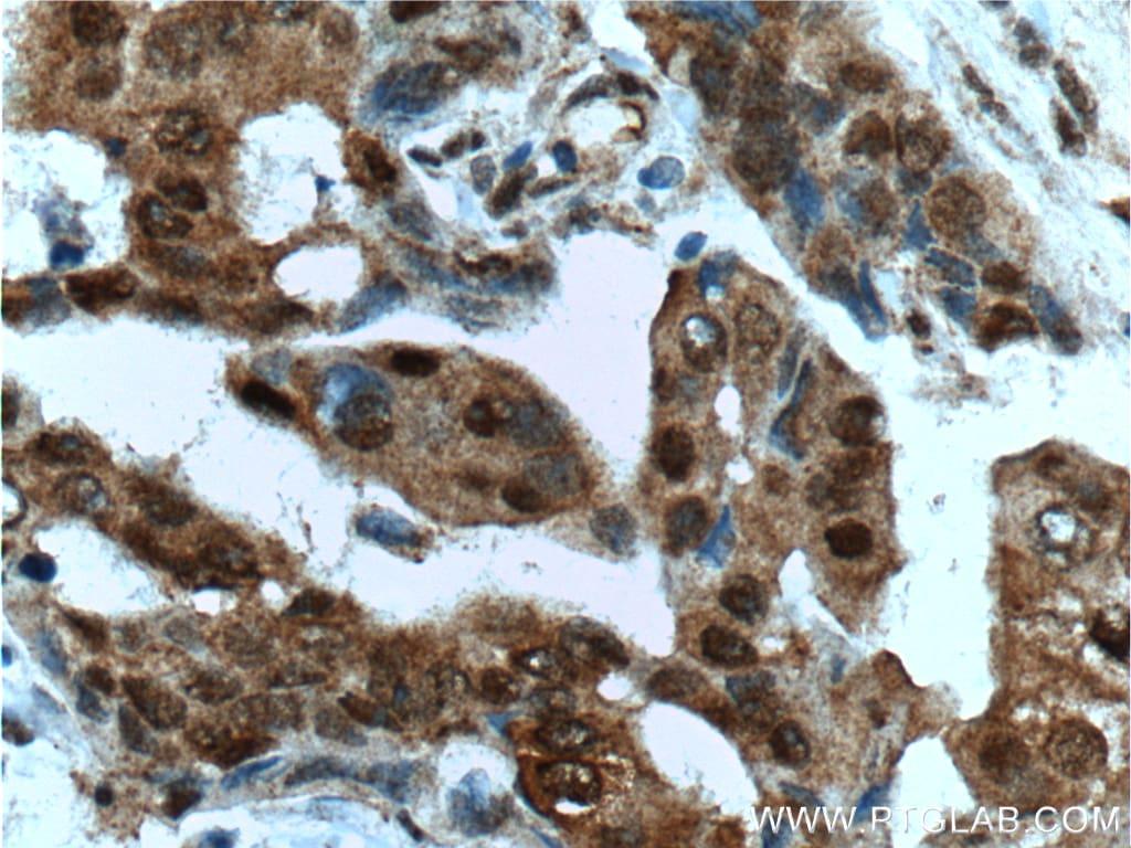HSP70 Antibody in Immunohistochemistry (Paraffin) (IHC (P))