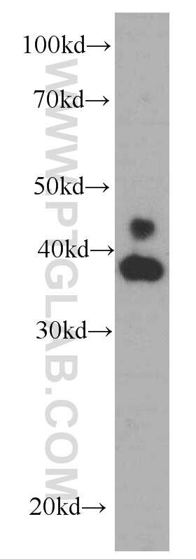 ERK1/2 Antibody in Western Blot (WB)