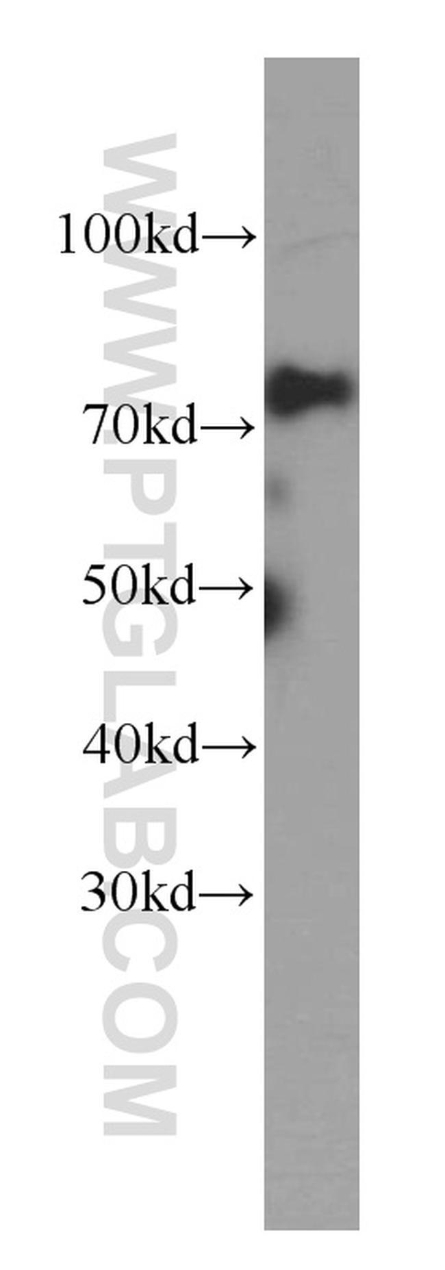 MTA2 Antibody in Western Blot (WB)