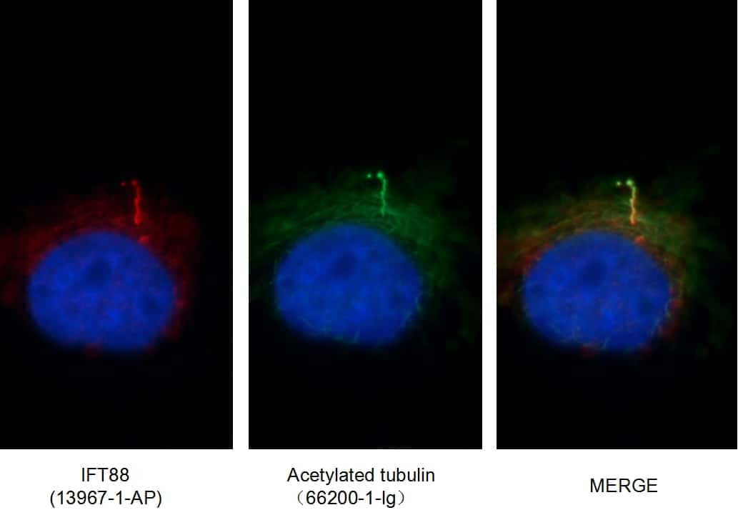 acetylated Tubulin(Lys40) Antibody in Immunofluorescence (IF)