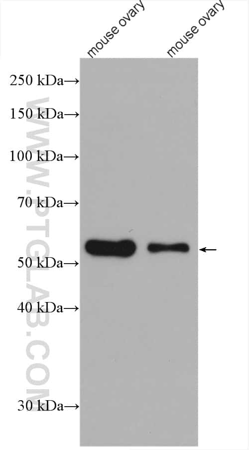 acetylated Tubulin(Lys40) Antibody in Western Blot (WB)