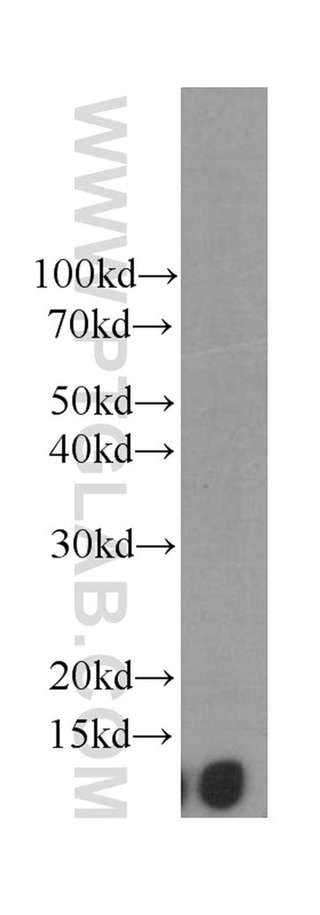 Beta-2-microglobulin Antibody in Western Blot (WB)