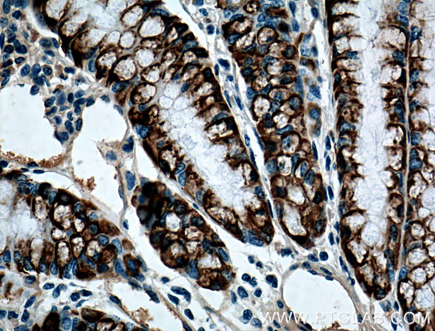 ST6GALNAC6 Antibody in Immunohistochemistry (Paraffin) (IHC (P))