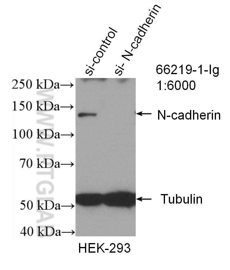 N-cadherin Antibody in Western Blot (WB)