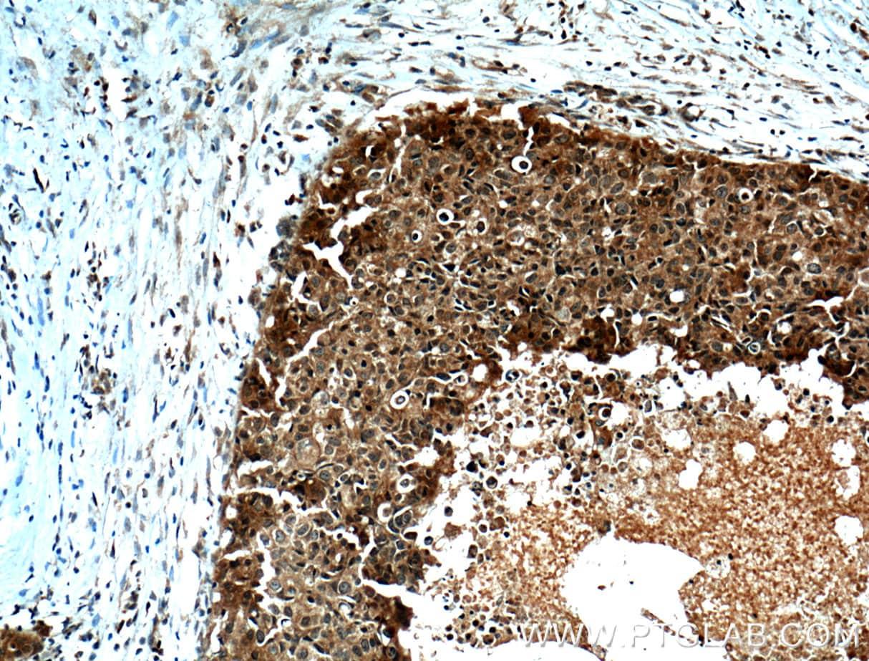 ORAI1 Antibody in Immunohistochemistry (Paraffin) (IHC (P))