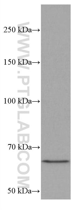 MALT1 Antibody in Western Blot (WB)