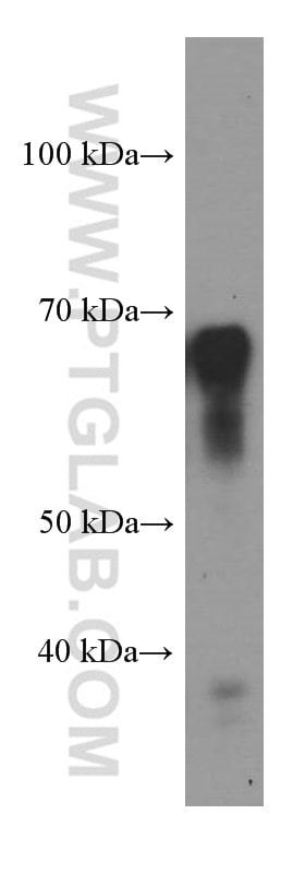 STXBP2 Antibody in Western Blot (WB)