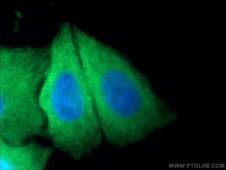 beta Tubulin Antibody in Immunofluorescence (IF)