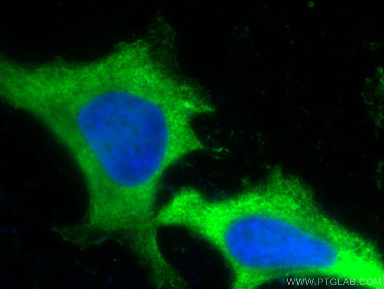 PD-L1/CD274 Antibody in Immunofluorescence (IF)