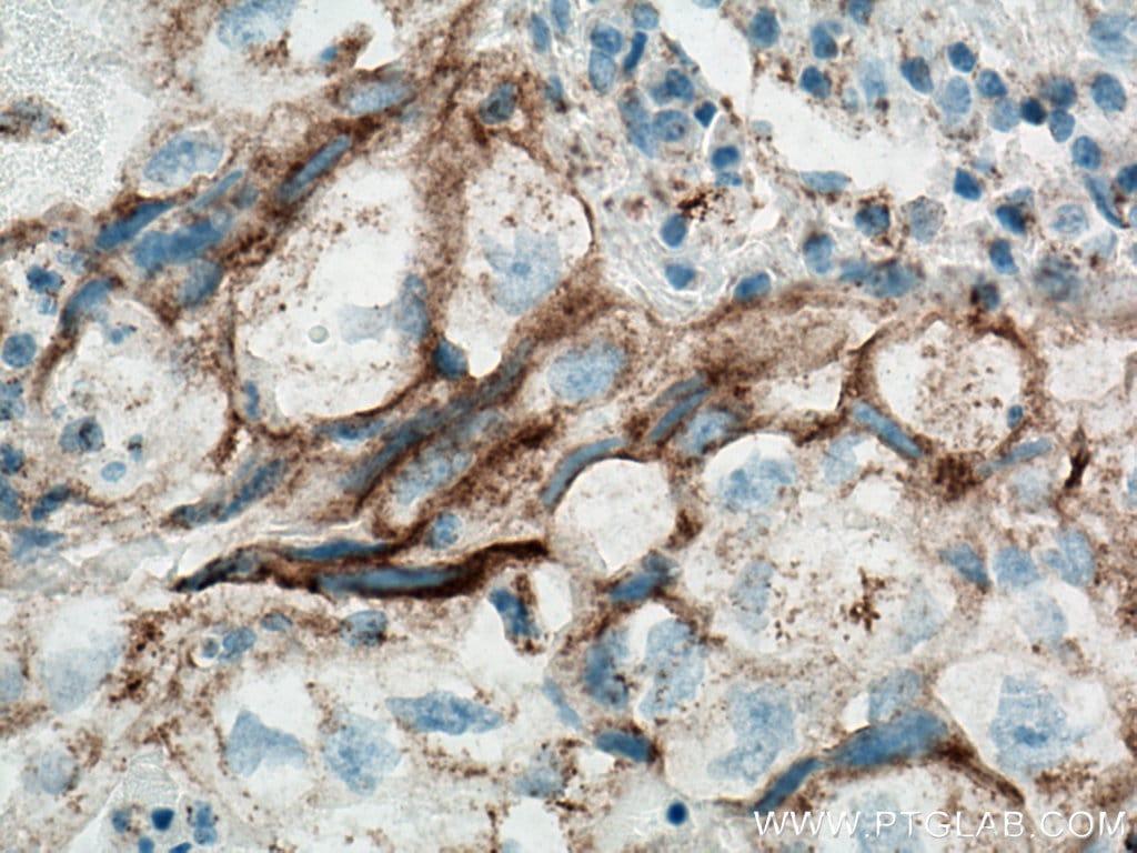PD-L1/CD274 Antibody in Immunohistochemistry (Paraffin) (IHC (P))