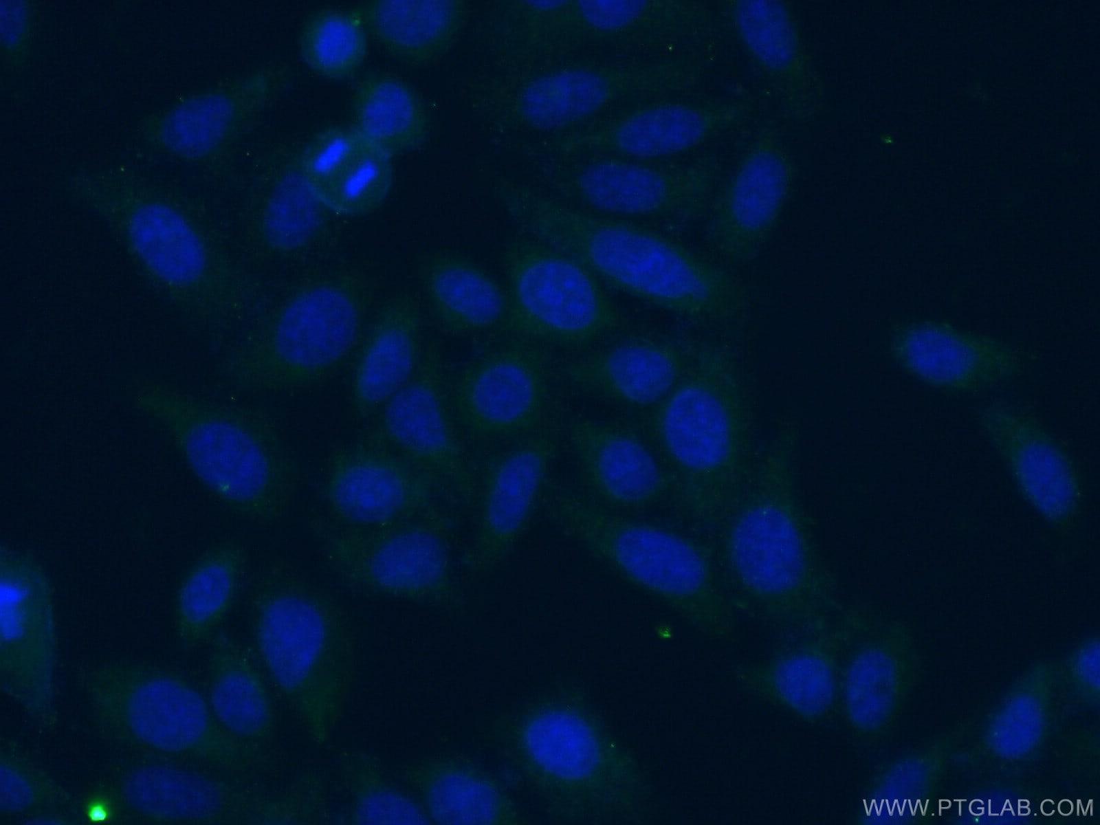 GLS Antibody in Immunofluorescence (IF)