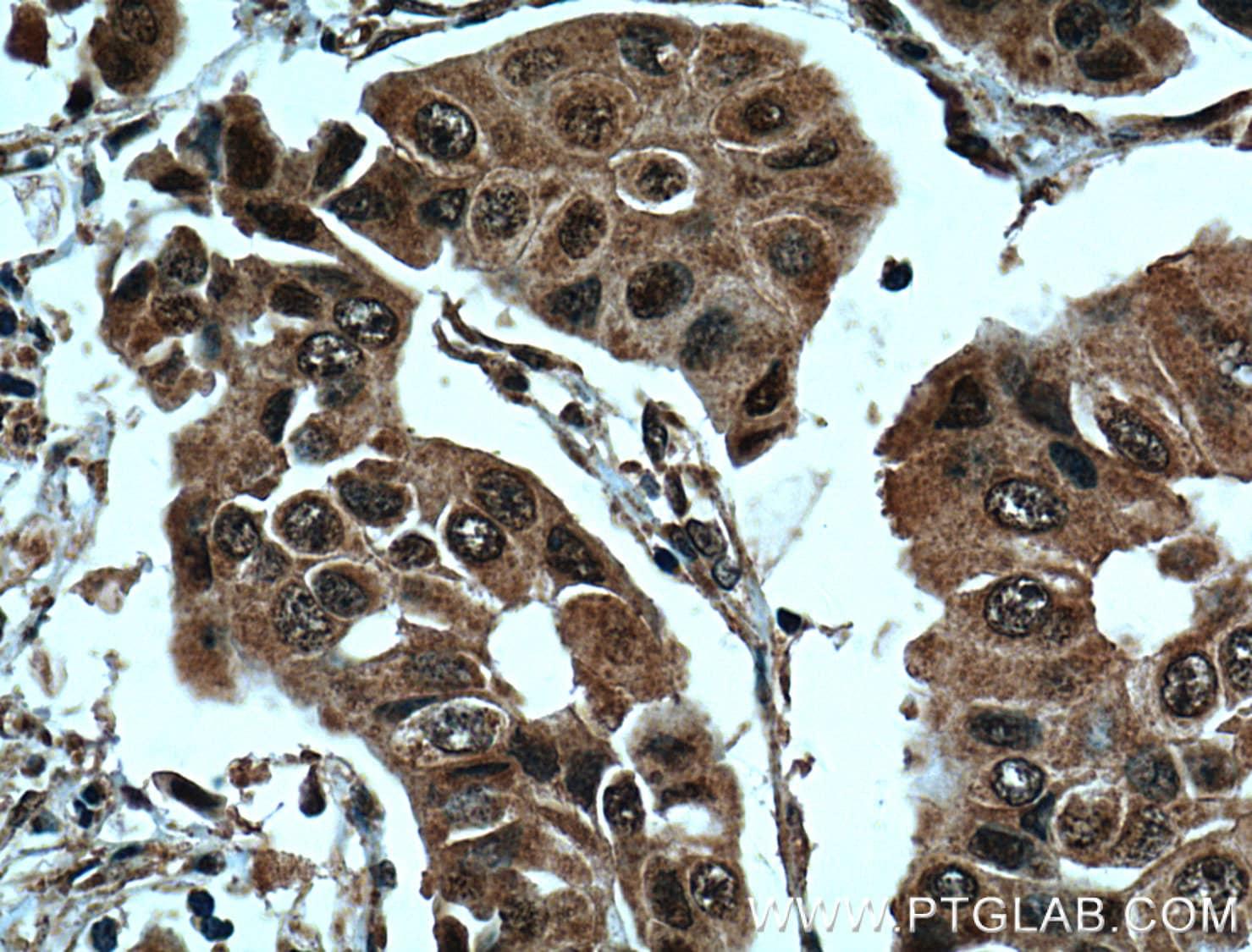 BRCA1 Antibody in Immunohistochemistry (Paraffin) (IHC (P))