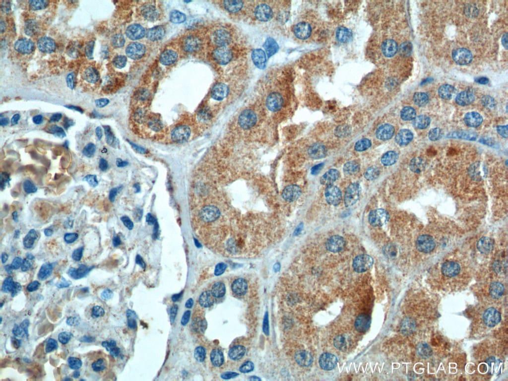 CLTB Antibody in Immunohistochemistry (Paraffin) (IHC (P))