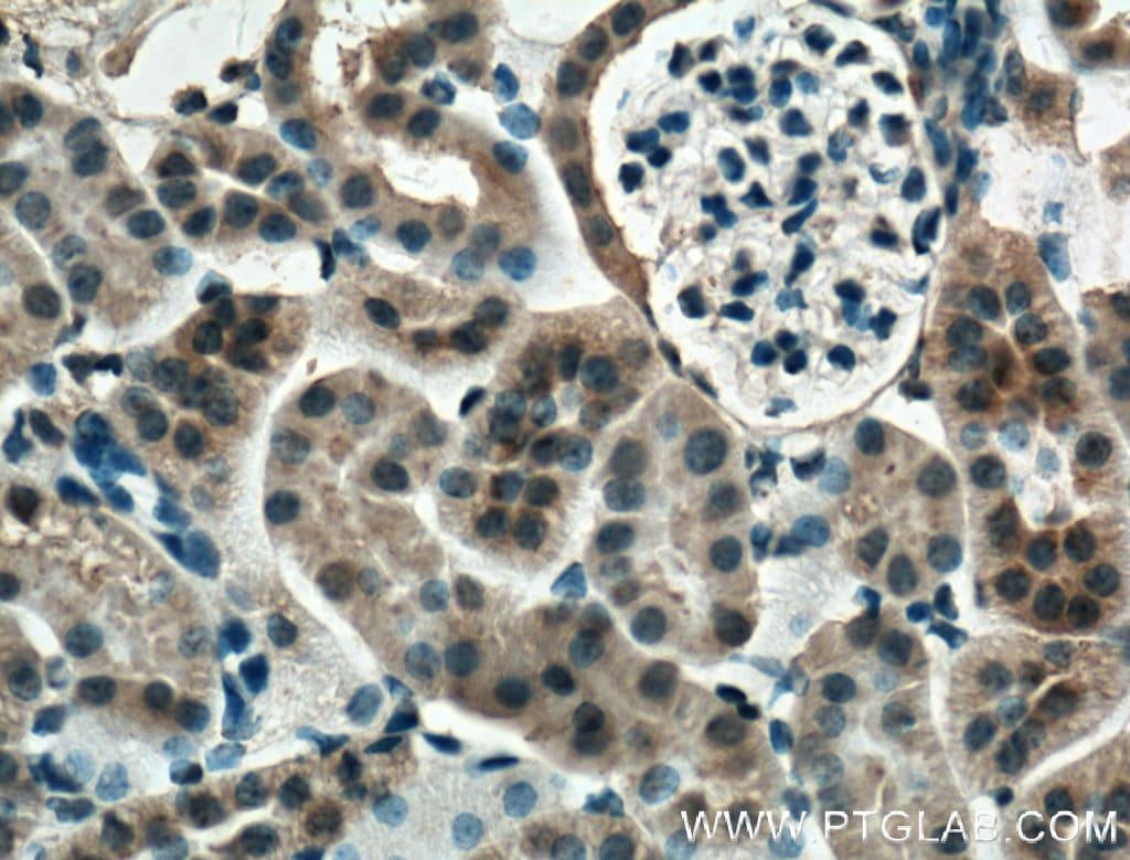 Mcp1 Antibody in Immunohistochemistry (Paraffin) (IHC (P))